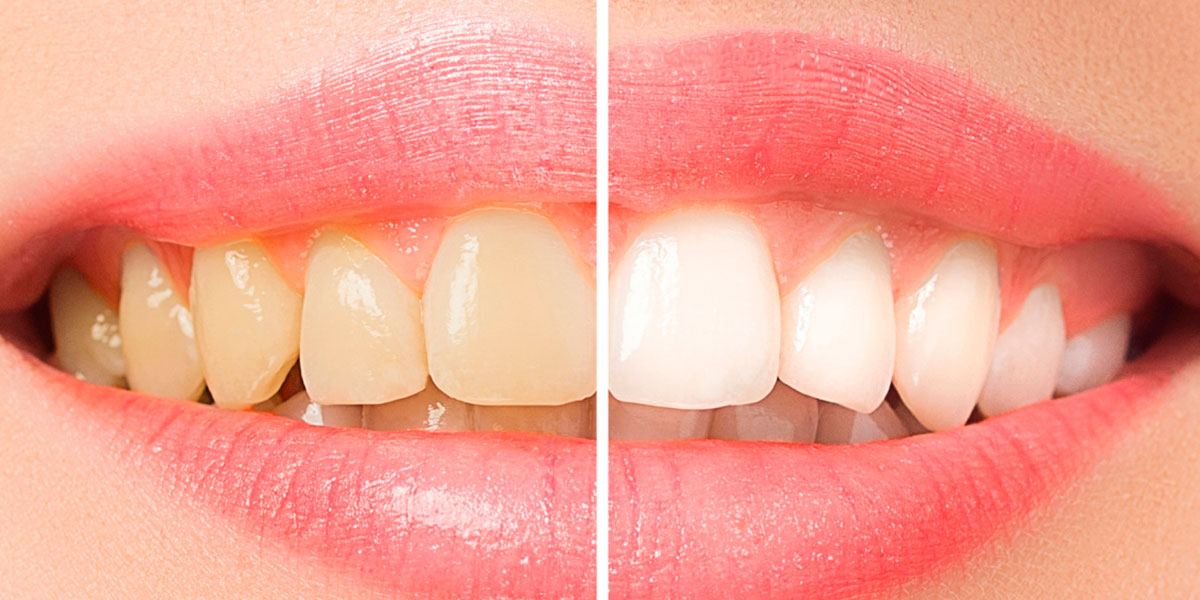 dentista3