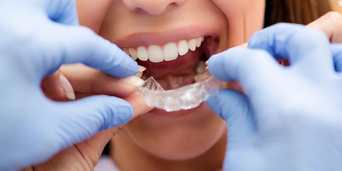ortodonciasevilla