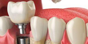 parte de un implante dental